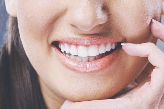 Методы художественной реставрации зубов